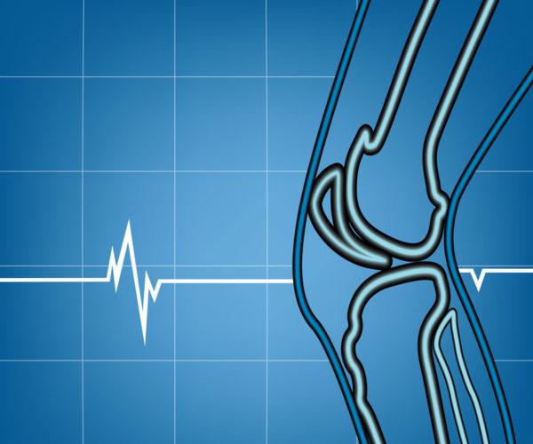 Rheumatoid Arthritis (RA) Osteoarthritis (OA)