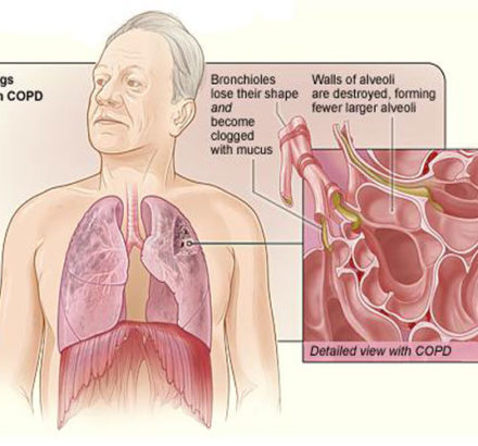 Copd_2010Side123