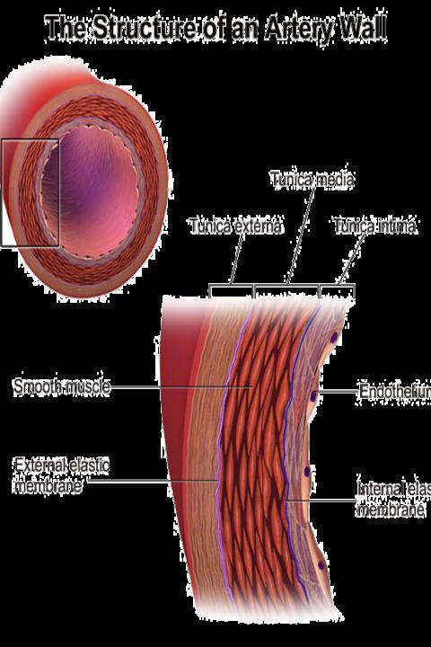 Peripheral Arterial Disease Treatments