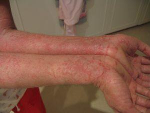 Eczema - Dermatology