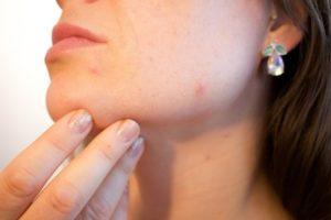Acne - Dermatology