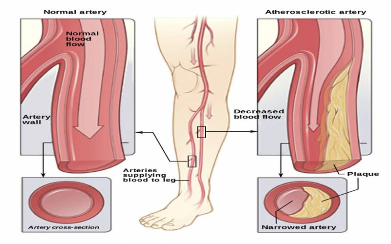 Peripheral Arterial Disease(PAD) - World Stem Cell Clinic